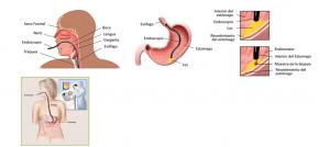 Fibrogastroscopia
