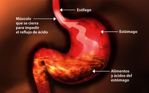 ENFERMEDAD POR REFLUJO GASTRO-ESOFÁGICO (ERGE)